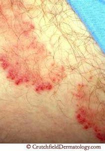 How do you get ringworms http www crutchfielddermatology com