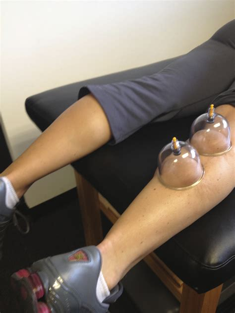 therapy az az cupping therapy camelback sports therapycamelback sports therapy