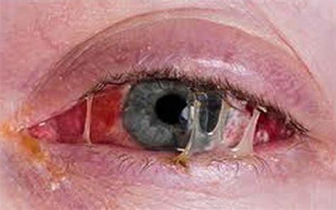 imagenes ojos con conjuntivitis la conjuntivitis genius intraocular technology