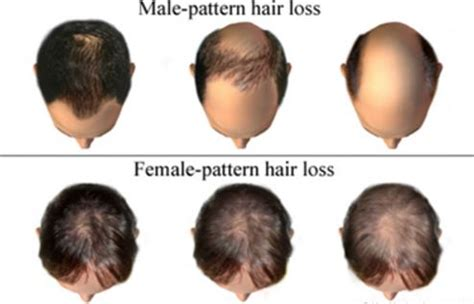 male pattern hair loss testosterone testosterone and hair loss low high testosterone in