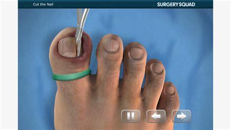 ingrown toenail removal at home soigner les ongles incarn 233 s avec un iphone logicielmac