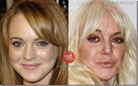 consecuencias exceso botox lo mejor amar 225 s estas fotos rostros de famosas destruidos por el
