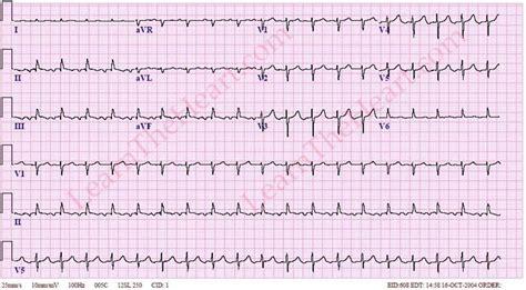 Atrial Tachycardia Images atrial tachycardia pictures