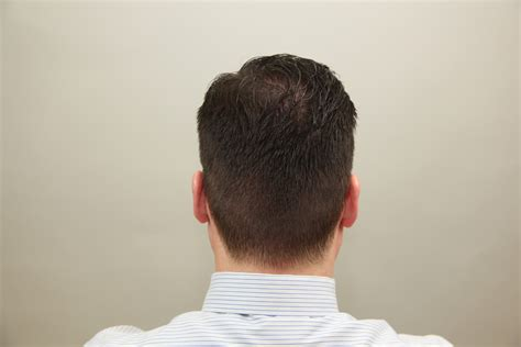 pictures of the back of men heads how to taper hair archives how to cut hair