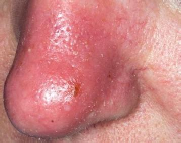 has nose nostril infection gallery