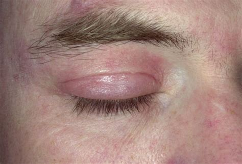 shoo for yeast infection fungal eyelid infection