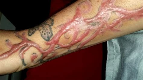 tattoo keloid skin tattoo removal online training