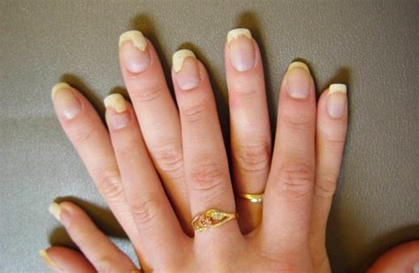 Nail Problems by Potential Hazards Of Acrylic Nails