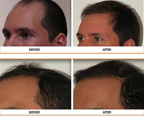 viviscal eyebrow before and after biotin before and after men www pixshark com images