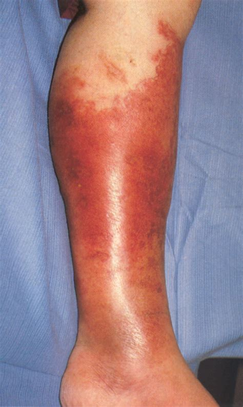 cellulitis after c section image gallery hemorrhagic cellulitis