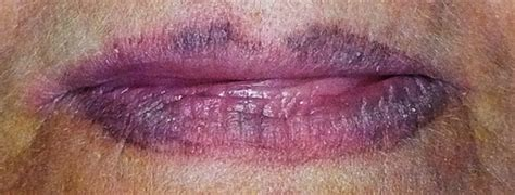 lip liner tattoo gone wrong permanent makeup nightmares how to find a good permanent
