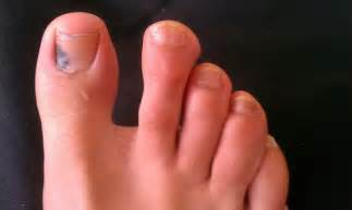 nail bed melanoma nail bed melanoma melanoma under toenail treatment related