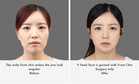 korean face shape type get to know korean face contouring front chin surgery