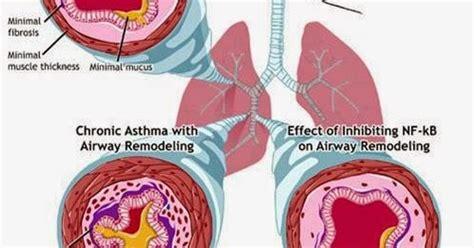 Pipet Obat Isi 2 atshma asma gejala bahaya dan pengobatan asma