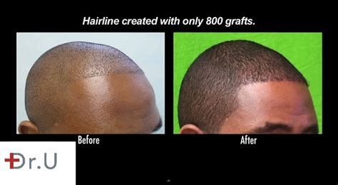 hair transplant america african american advanced ugraft fue hair transplant using