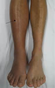 Description deep vein thrombosis of the right leg jpg