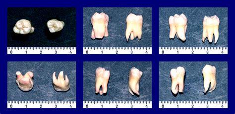 wann zahn ziehen weisheitszahn