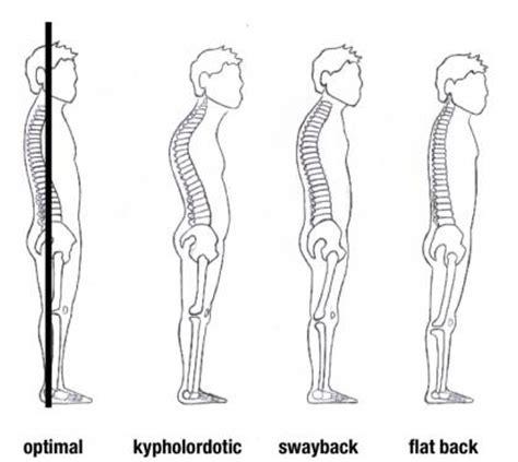 perils  poor posture