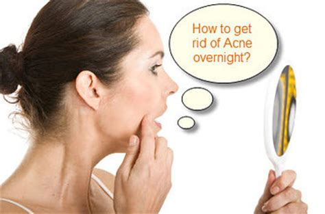 how to get rid of acne without acne medicine
