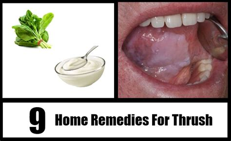 9 thrush home remedies treatments cure for