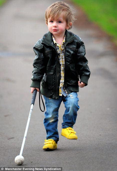 children blind blind boy 2 has lebers congenital amaurosis and must