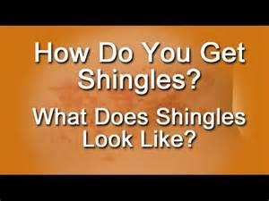 how do you get shingles what does shingles look like