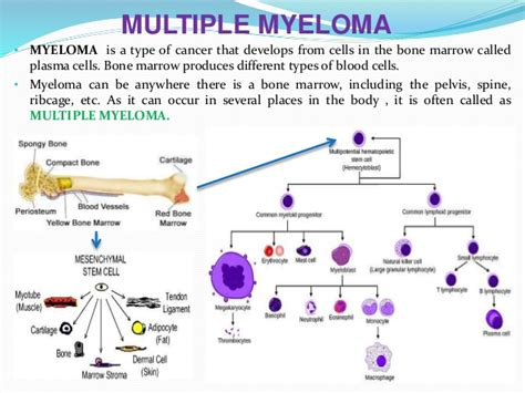 Myeloma Pathophysiology Diagram myeloma cells