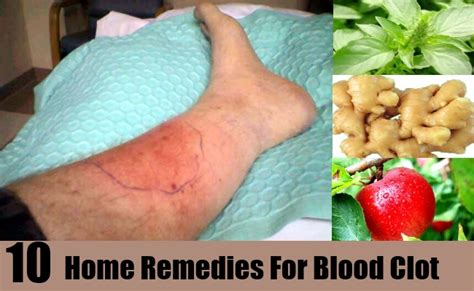 Blood Clot In Leg Treatment At Home by What Doctor Treats Blood Clots How To Make Blood Thinner