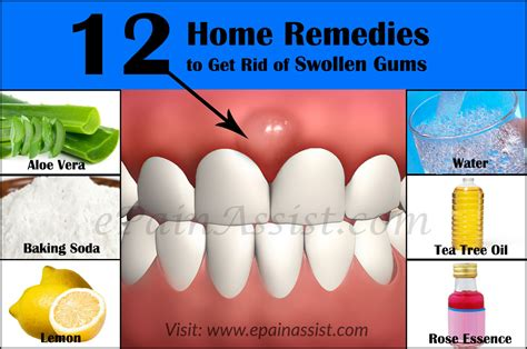 what causes swollen gums home remedies to get rid of it