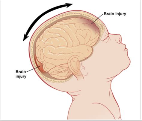 can swinging baby cause brain damage 187 shaken baby syndrome the dangers and how you can