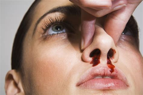bloody nose bloody nose causes symptoms and treatment
