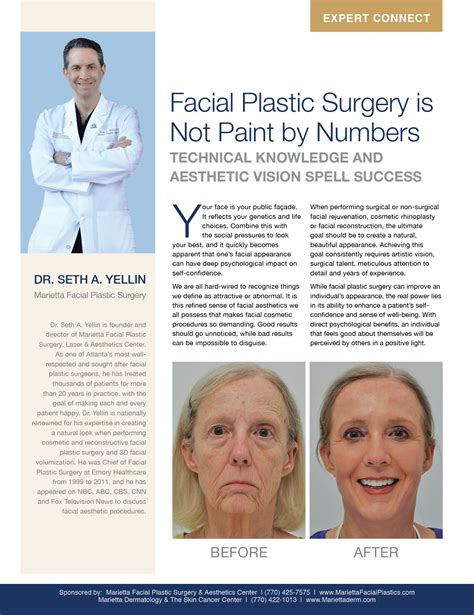 7 Cosmetic Procedures Id To by Plastic Surgery Is Not Paint By Numbers