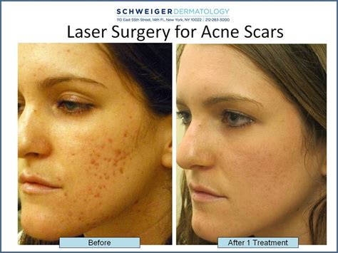 acne laser treatment the laser treatment clinic london how to treat deep pitted acne scars fractional co2 laser