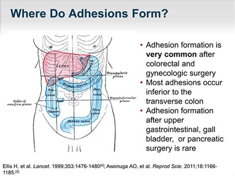 bowel problems after c section abdominal adhesions after gallbladder surgery diagram of