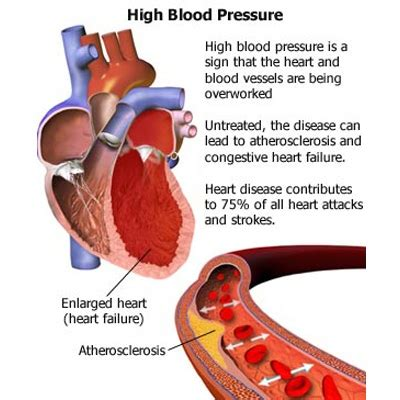 high blood pressure and c section common causes of high blood pressure various causes