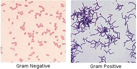 what color does gram positive bacteria stain drthrasher gram stain