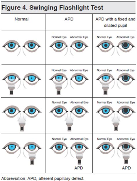 swinging light test pupillary light reflex consensuallight reflex pupillary