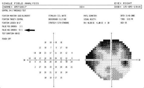 cloverleaf pattern visual field 08 hfa reliability indices ophthalmology 101