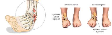 dolore caviglia interno la distorsione alla caviglia una guida passo passo