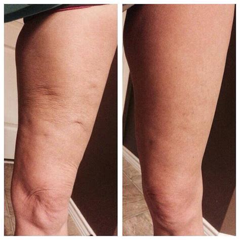 Miller Has Stretch Marks And Cellulite by Musely