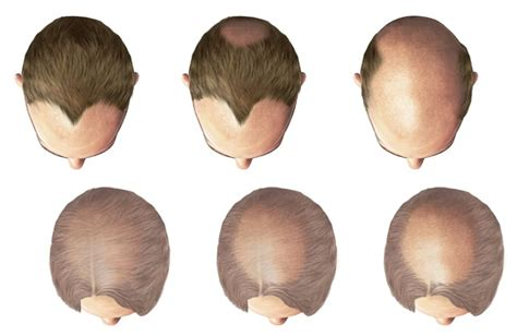 cicatricial pattern hair loss straight no chaser about hair loss and male pattern