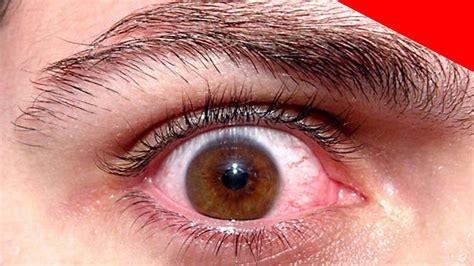imagenes visuales wikipedia como combatir los da 209 os causados por la diabetes en los