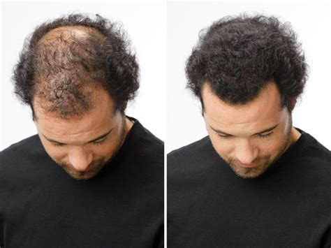 before and after thinning mens haircut hair loss treatment toppik australia
