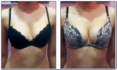 male breast enlargement must grow bust male breast enlargement must grow bust male breast