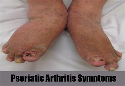 arthritis symptoms arthritis symptoms