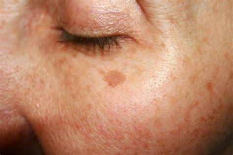 Flek Solution Melasma mesotherapy for pigmentation stretch marks andrea