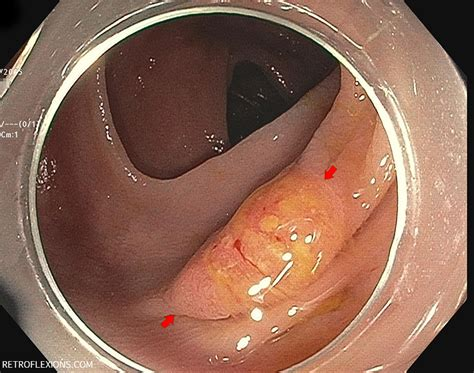 flat polyp resection part one retroflexions