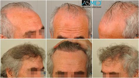 dr yates fue cost per graft asmed hair transplant results gallery norwood 6 dr