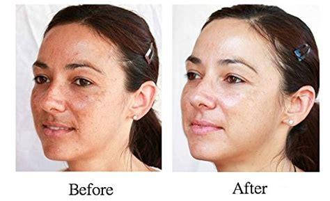 Gel Ipl 1kg By Cempaka Care 2 oz 60 ml hydroquinone pro treatment serum skin