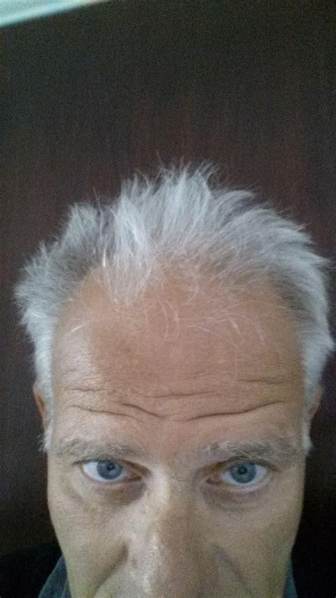 june 2015 stop hair loss maliniak method blog